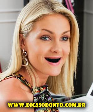 Ana Hickmann sem dente Dicas Odonto 2013