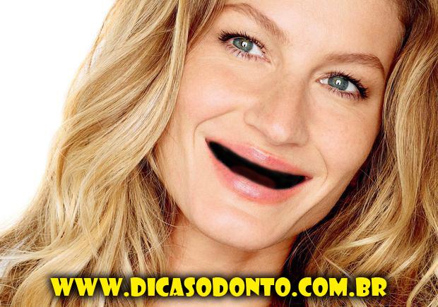 Gisele Bundchen sem dentes Dicas Odonto 2013