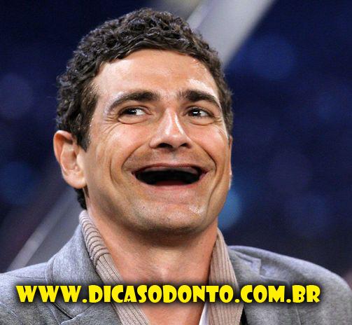 Reynaldo Gianechinni sem dentes Dicas Odonto 2013