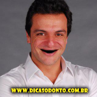 Rodrigo Lombardi sem dente Dicas Odonto 2013
