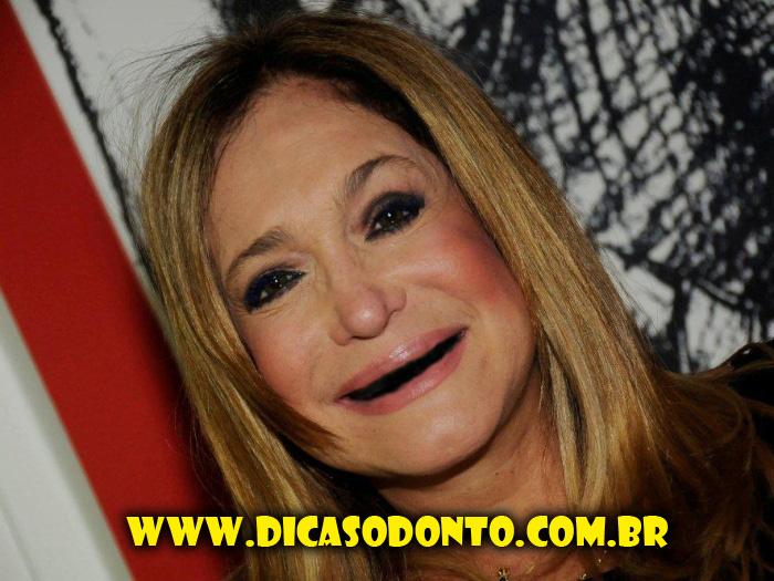 Suzana VIeira sem dente Dicas Odonto 2013