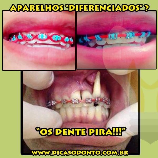 Aparelhos diferenciados - falsos - os dente pira final