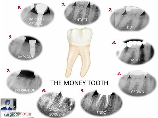 Money Molar 3