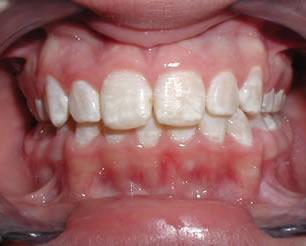 skvrny na zubech