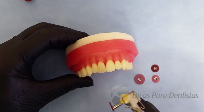 acabamento-e-polimento-resinas-dicas-da-dentista