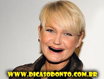Xuxa sem dente Dicas Odonto 2013