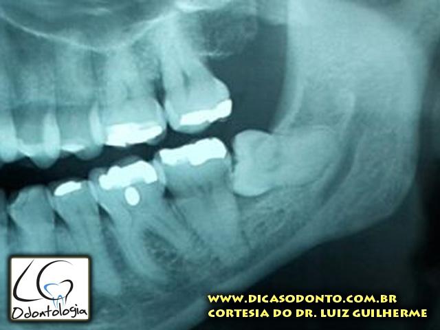 Dente do siso LG Odontologia Dicas Odonto (2)