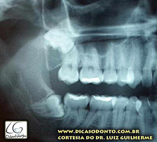 Dente do siso LG Odontologia Dicas Odonto (5)