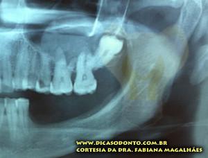 Dente do siso fora de posição Dra Fabiana Dicas Odonto