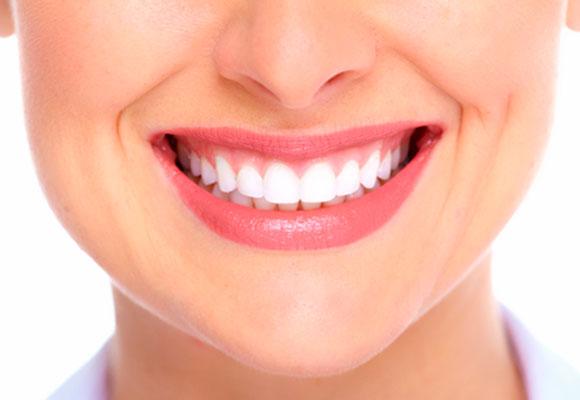 clareamento dental dentes brancos