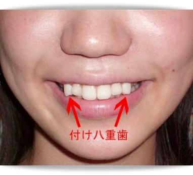 Yaeba Teeth Moda japonesa 2