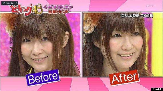 Yaeba Teeth Moda japonesa